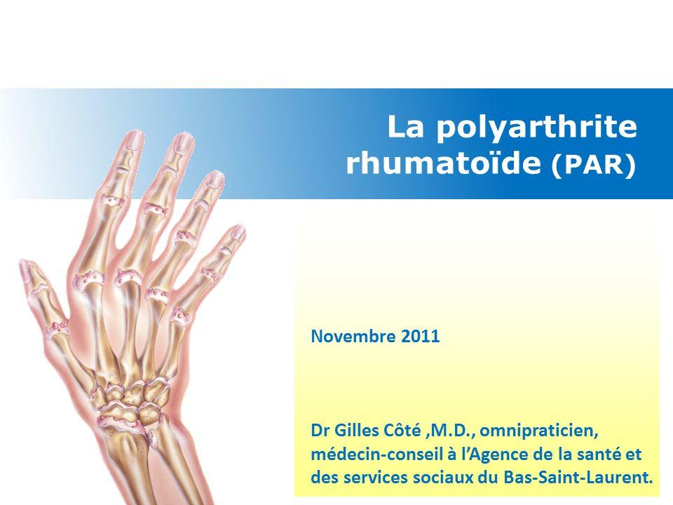 Comparatif Boswellia - Arthrite : les traitements | Pharmacien Giphar