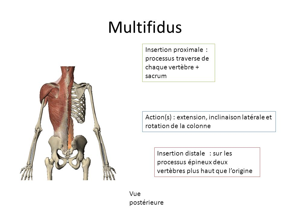 Multifidus Insertion proximale : processus traverse de chaque vertèbre + sacrum.