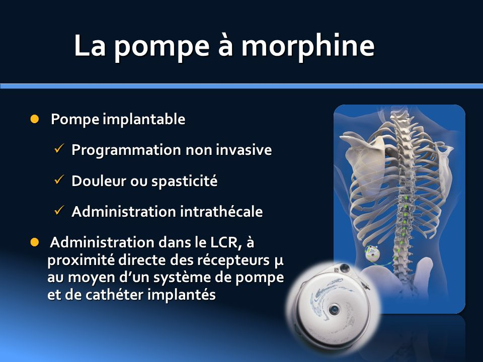La pompe à morphine Pompe implantable Programmation non invasive