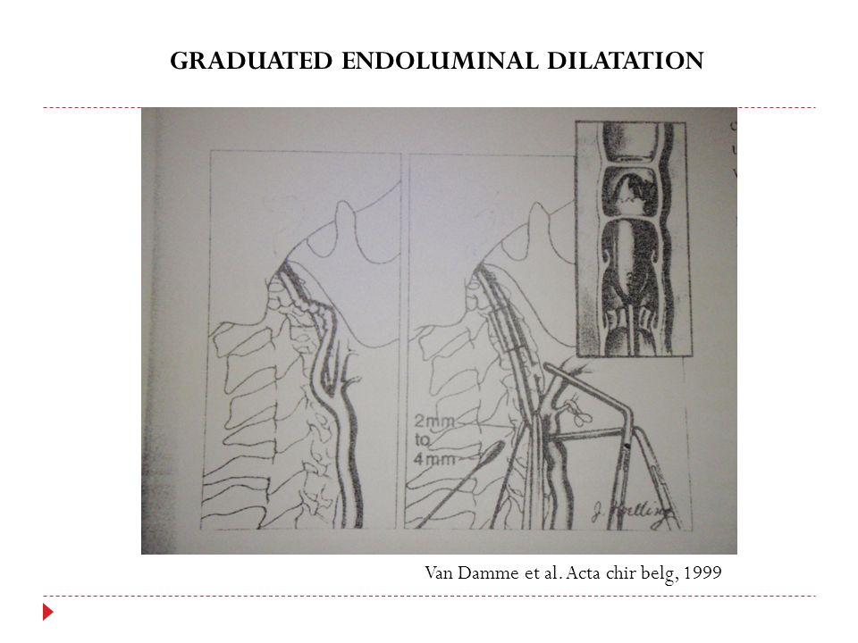 GRADUATED ENDOLUMINAL DILATATION