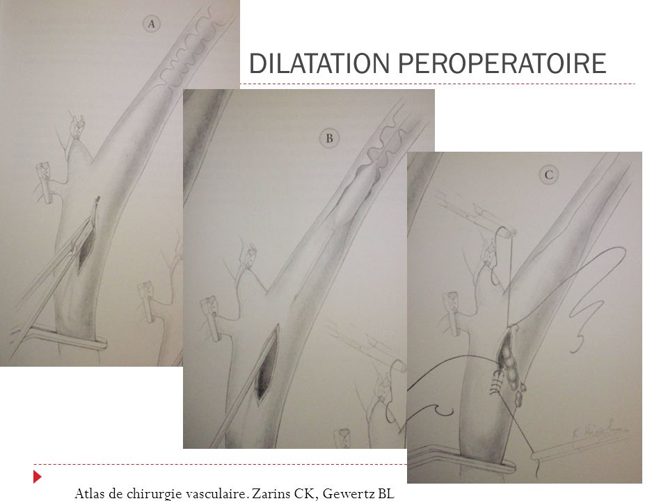 DILATATION PEROPERATOIRE