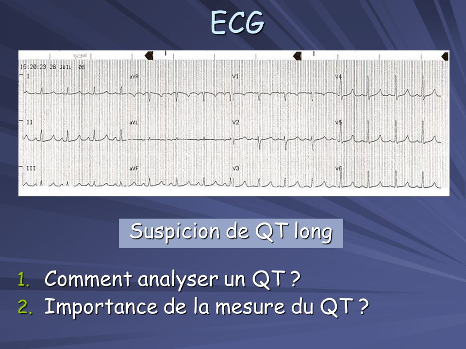 ECG Suspicion de QT long Comment analyser un QT
