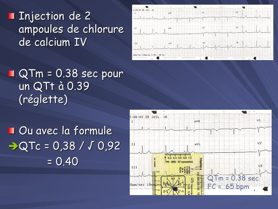 Injection de 2 ampoules de chlorure de calcium IV