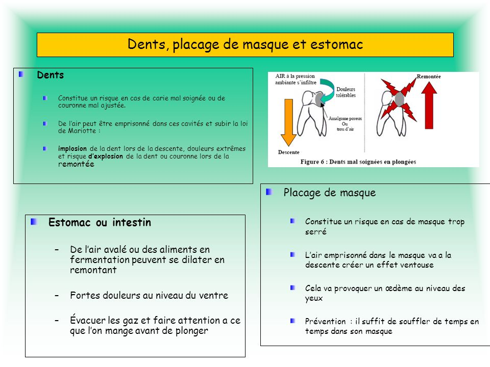 Dents, placage de masque et estomac