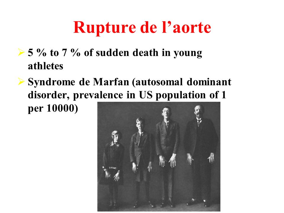 Rupture de l'aorte 5 % to 7 % of sudden death in young athletes