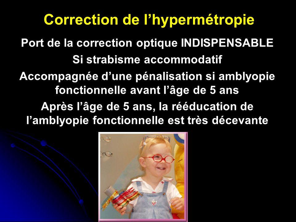 hipermetropie și ambliopie)