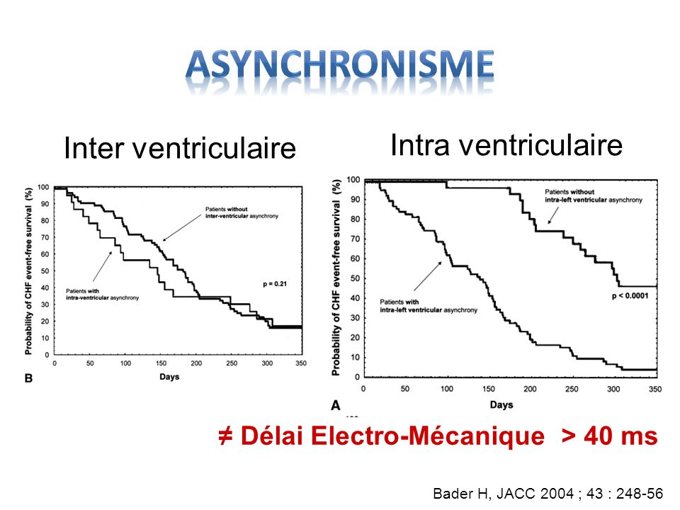 Asynchronisme Intra ventriculaire Inter ventriculaire