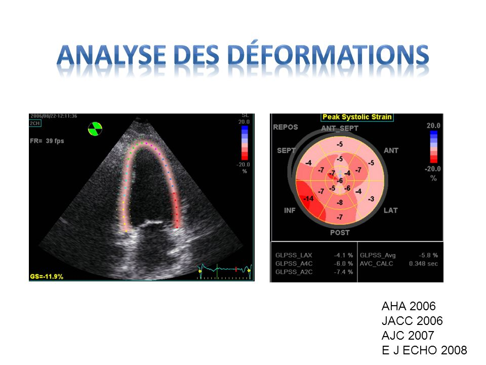 Analyse des déformations