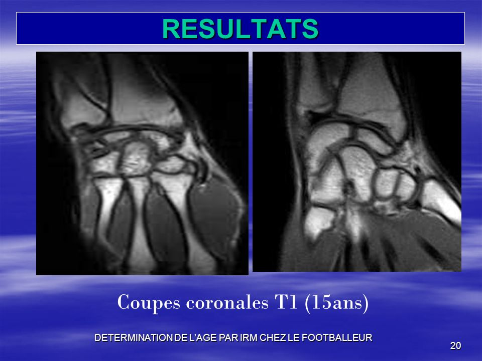 RESULTATS Coupes coronales T1 (15ans)