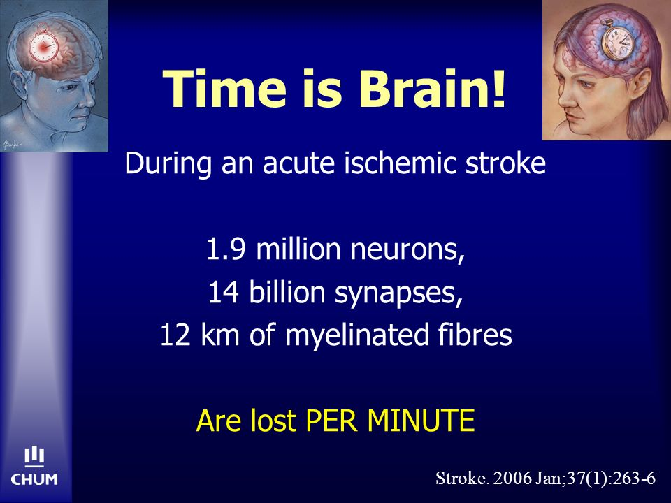 Time is Brain! During an acute ischemic stroke 1.9 million neurons, 14 billion synapses, 12 km of myelinated fibres Are lost PER MINUTE