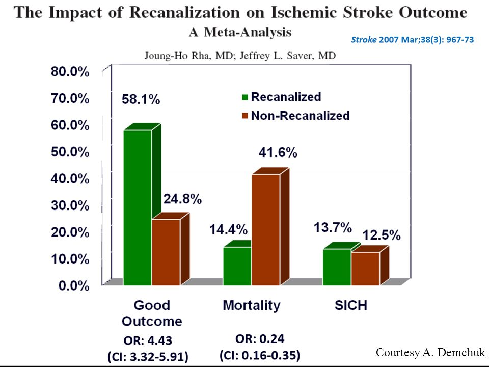 In the subgroup of patients in whom occurrence of recanalization was assessed within 6 hours of onset, good outcome was achieved in 50.9% of recanalized patients versus 11.1% of nonrecanalized patients, (odds ratio, 6.36; 95% CI, 3.32 to 12.17).