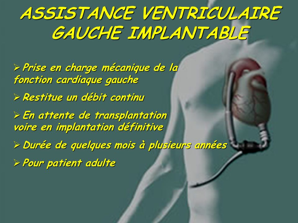 ASSISTANCE VENTRICULAIRE GAUCHE IMPLANTABLE