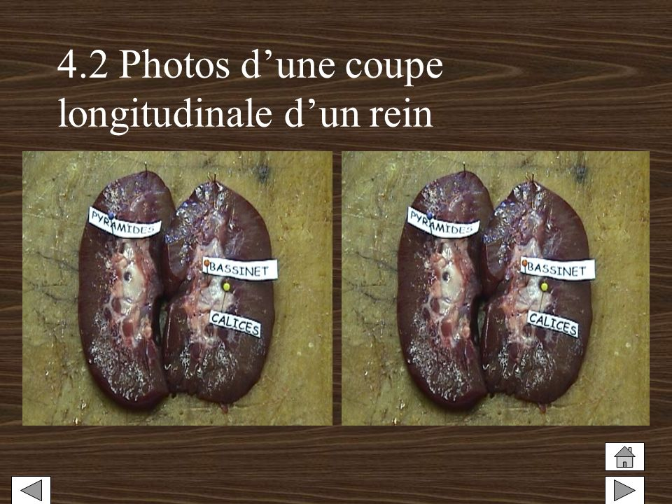 4.2 Photos d'une coupe longitudinale d'un rein