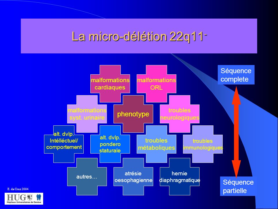 La micro-délétion 22q11- Séquence complete phenotype Séquence