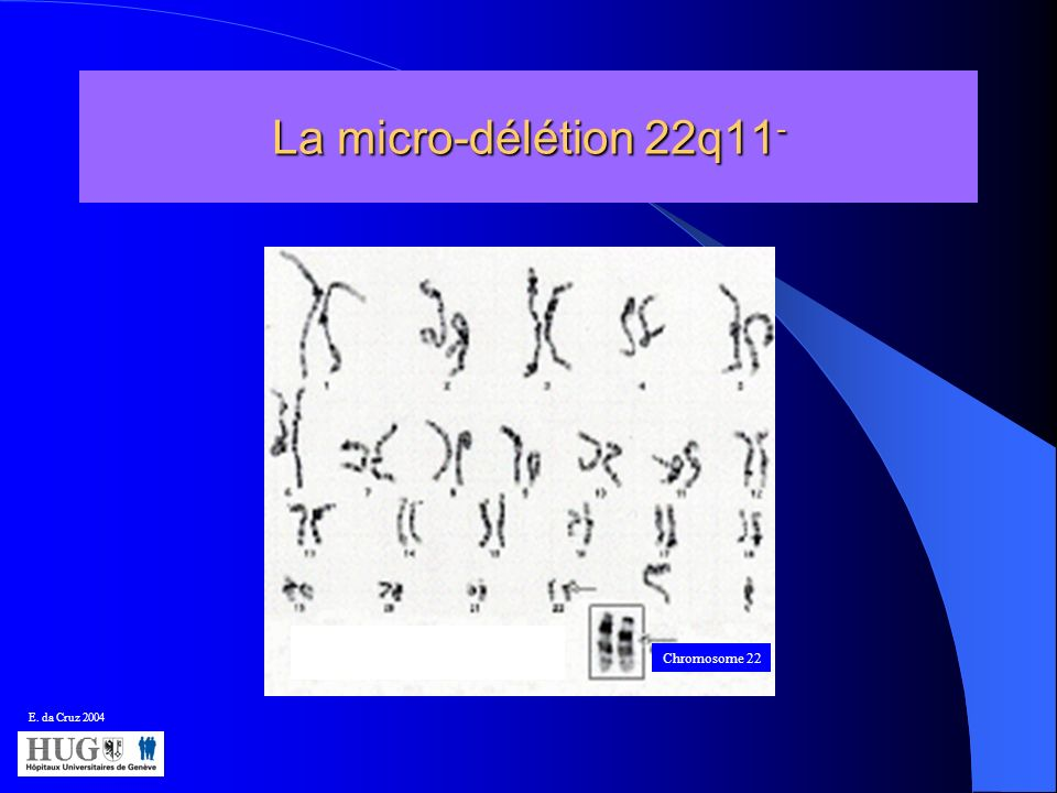 La micro-délétion 22q11- Chromosome 22 E. da Cruz 2004