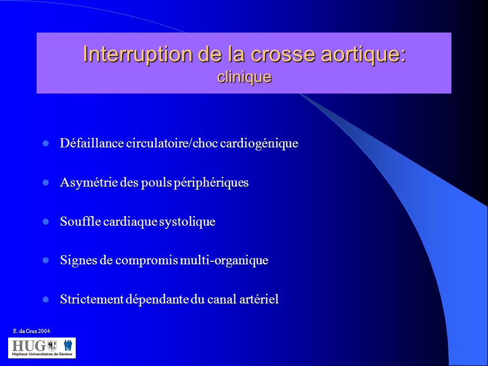 Interruption de la crosse aortique: clinique