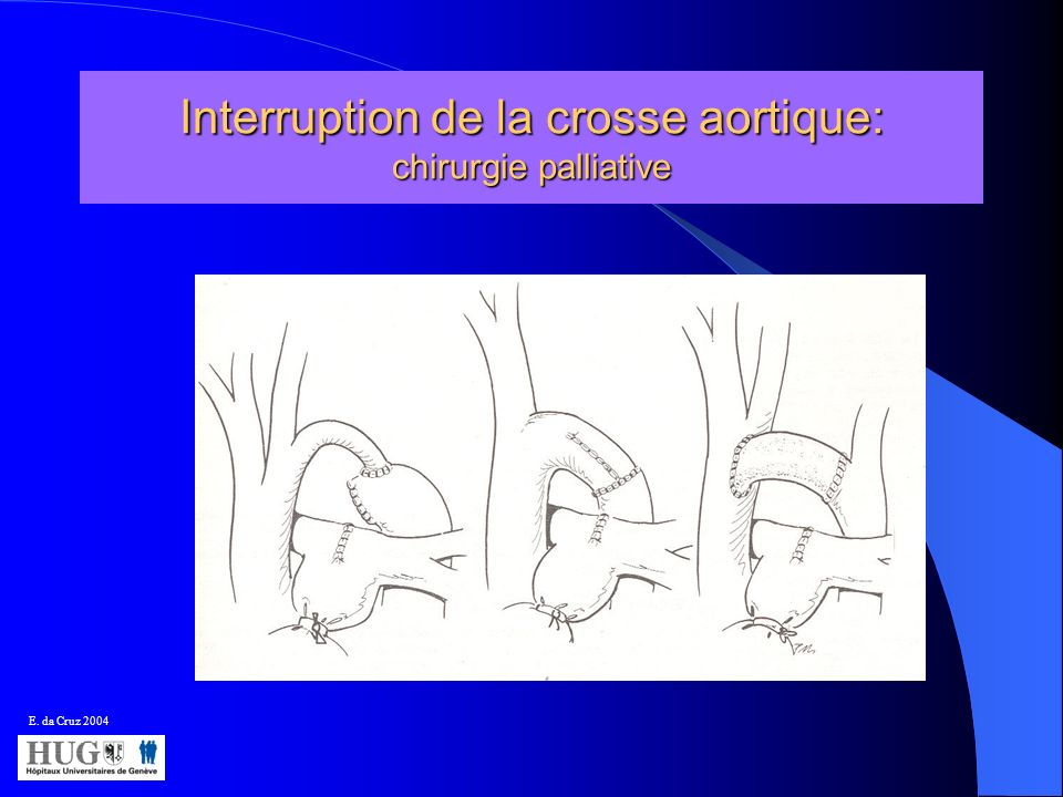 Interruption de la crosse aortique: chirurgie palliative