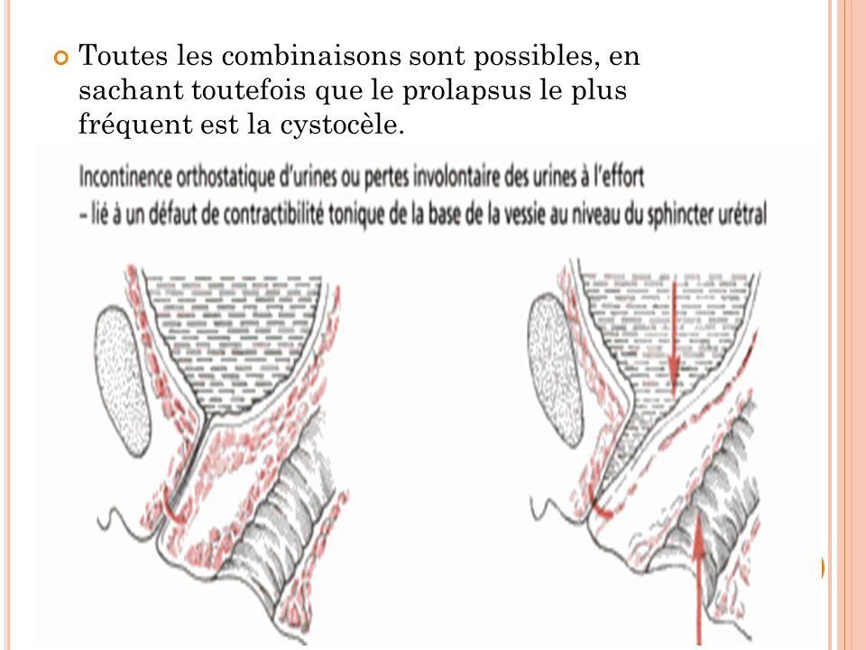 Prolapsus Génital Avec Incontinence Urinaire Ppt Video Online