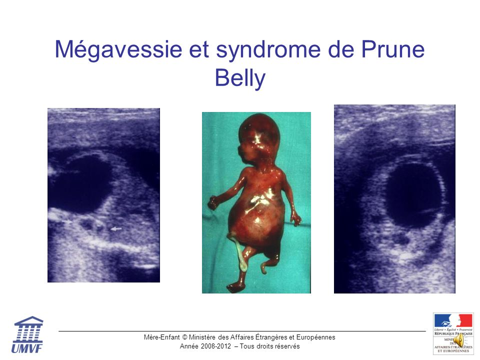 Mégavessie et syndrome de Prune Belly