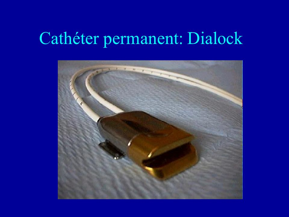 Cathéter permanent: Dialock