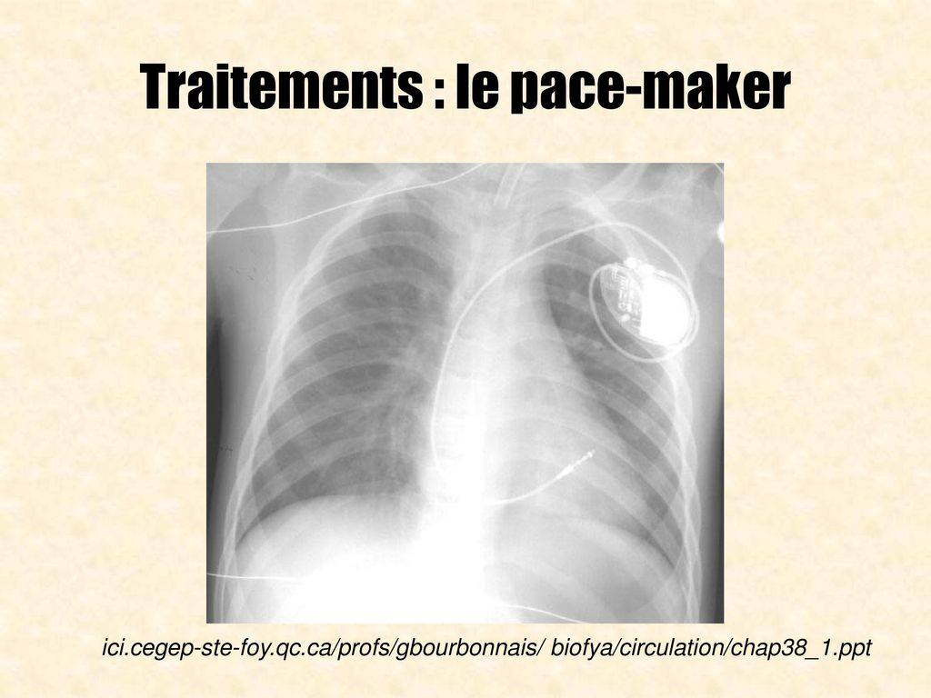 Traitements : le pace-maker