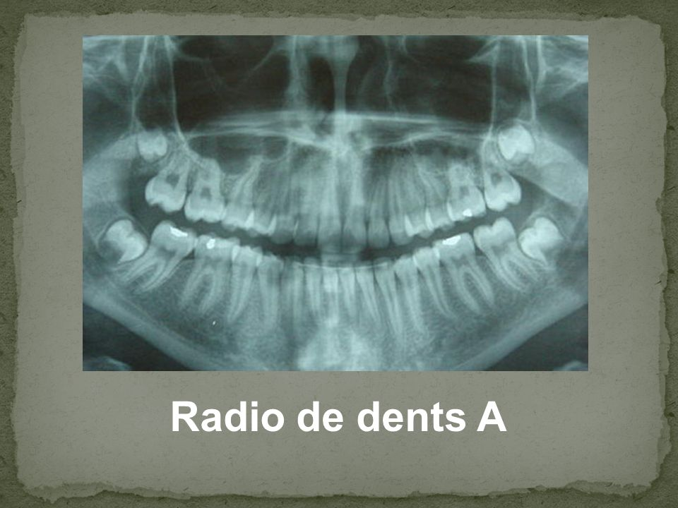 Radio de dents A