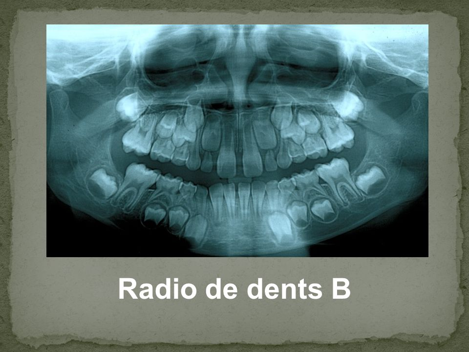Radio de dents B