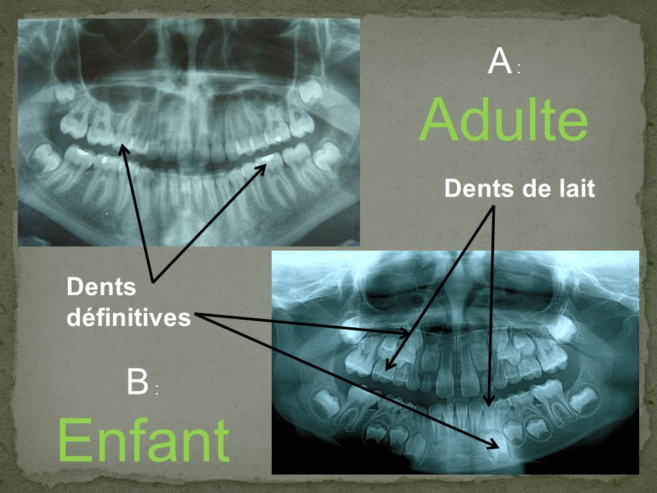 A : Adulte Dents de lait Dents définitives B : Enfant