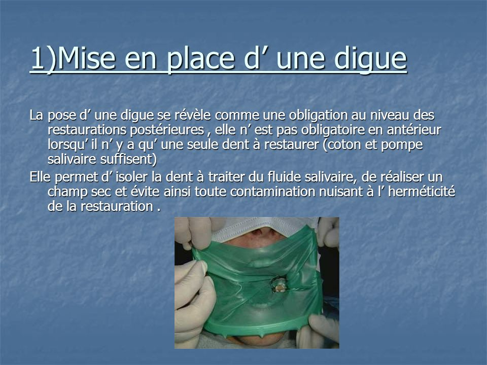 1)Mise en place d' une digue