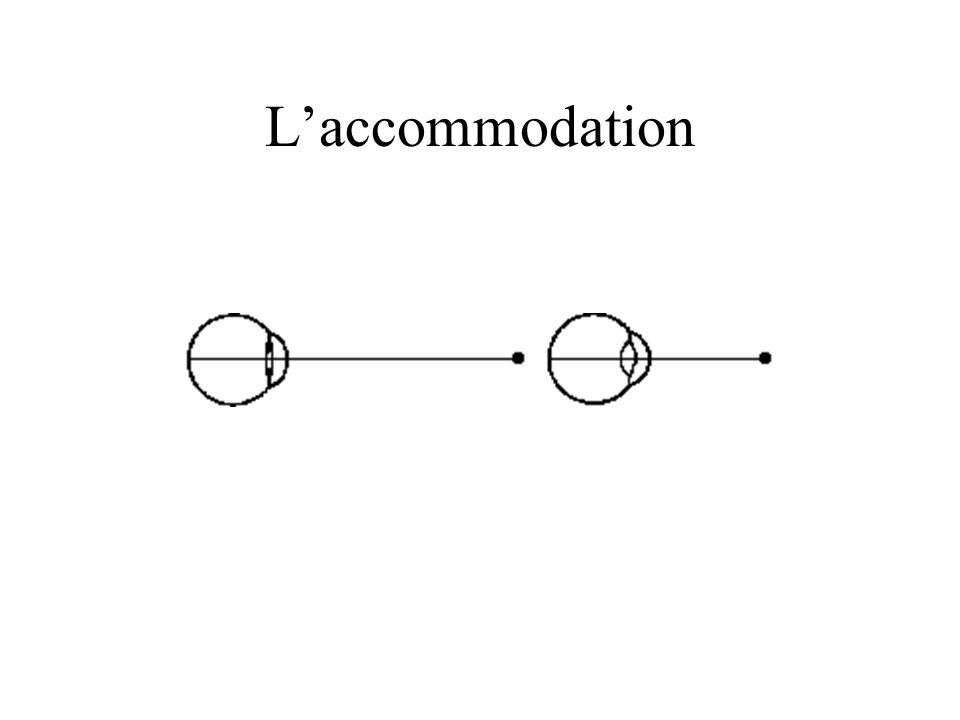 L'accommodation