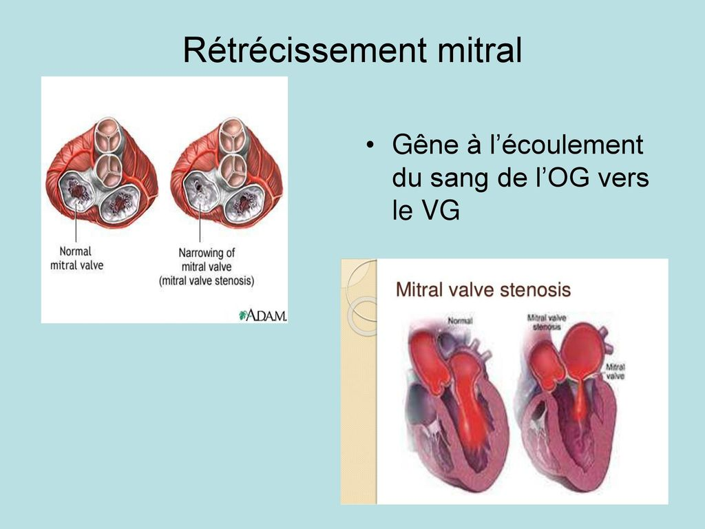 Syndromes valvulaires - ppt télécharger
