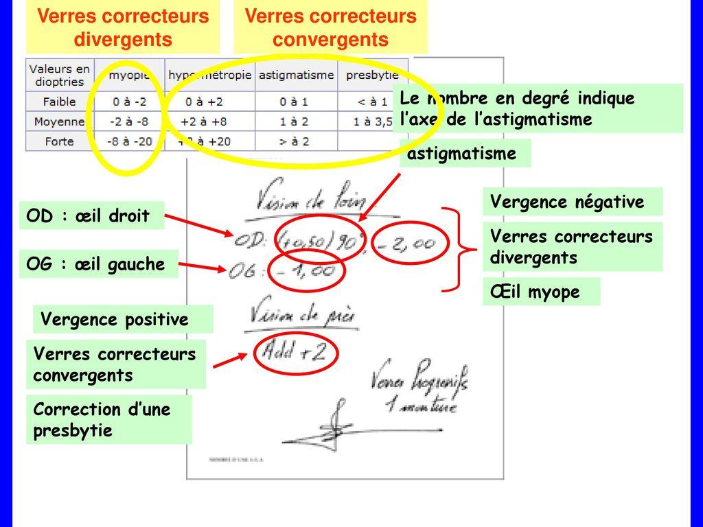 b3a7bf8b6f 26 Verres correcteurs divergents Verres correcteurs convergents