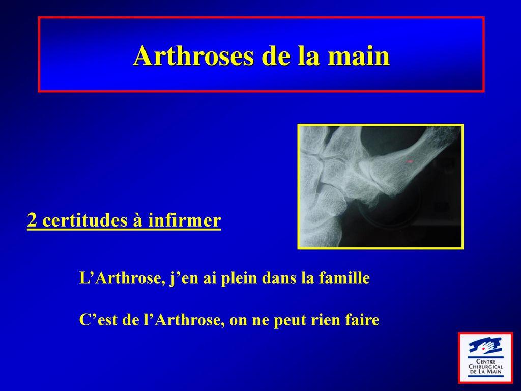 Pathologies dégénératives de la main et solutions chirurgicales ...