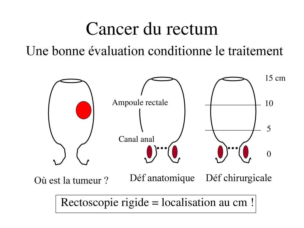 cancer rectal traitement chirurgical toate preparatele de helmint