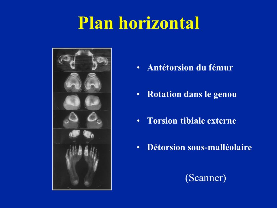 Plan horizontal (Scanner) Antétorsion du fémur Rotation dans le genou