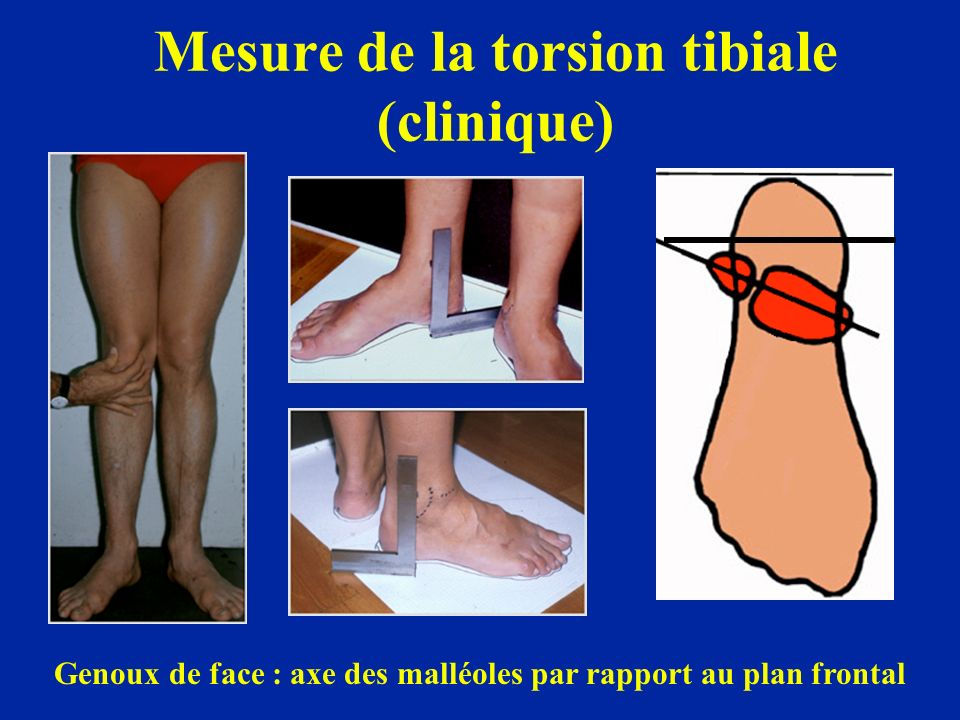 Mesure de la torsion tibiale (clinique)