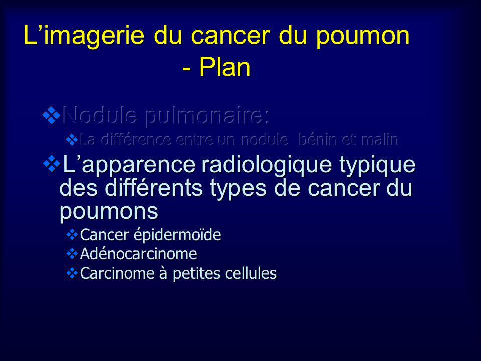 L'imagerie du cancer du poumon - Plan