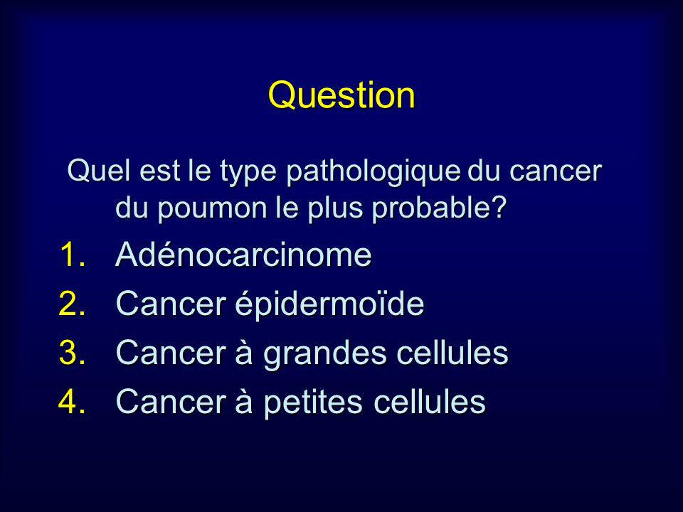 Question Adénocarcinome Cancer épidermoïde Cancer à grandes cellules