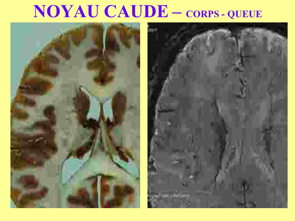 NOYAU CAUDE – CORPS - QUEUE