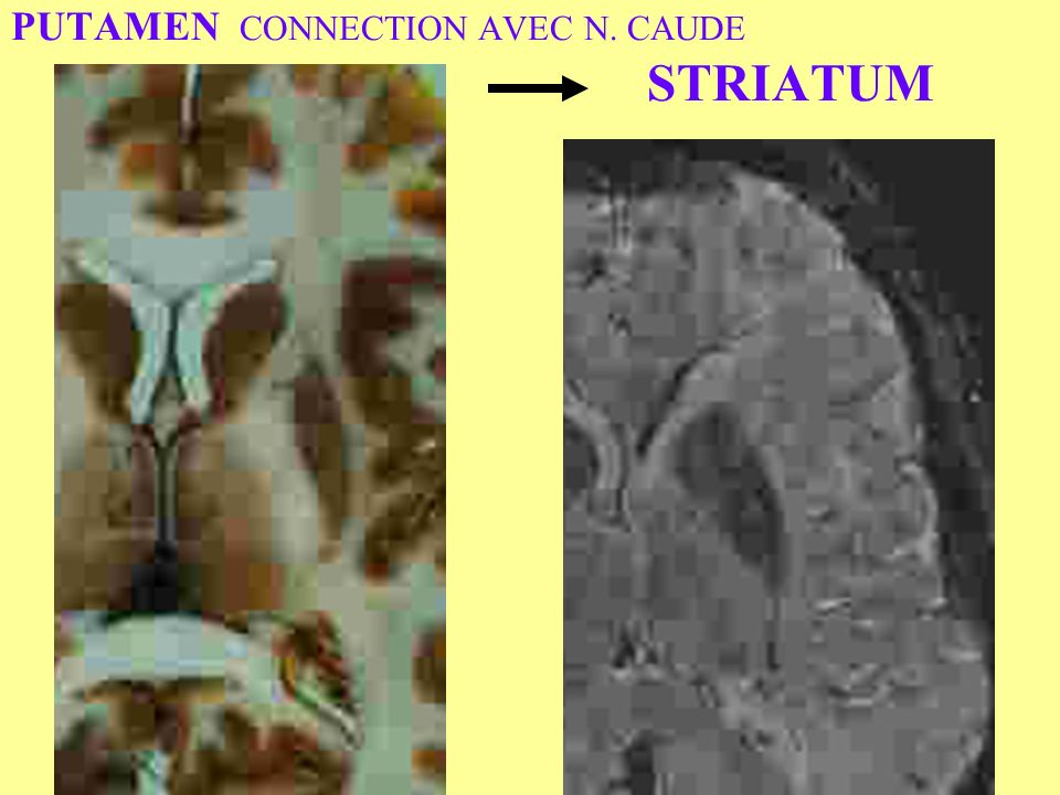 PUTAMEN CONNECTION AVEC N. CAUDE STRIATUM