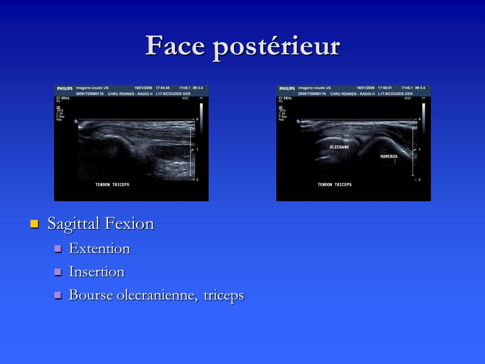 Face postérieur Sagittal Fexion Extention Insertion