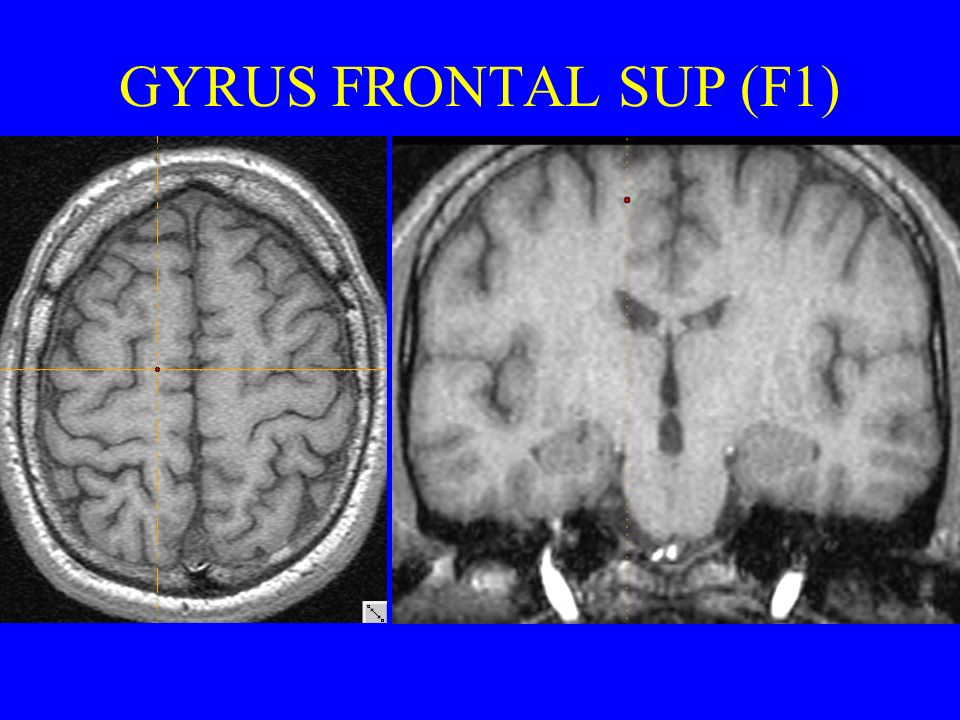 GYRUS FRONTAL SUP (F1)
