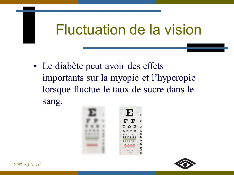 Fluctuation de la vision