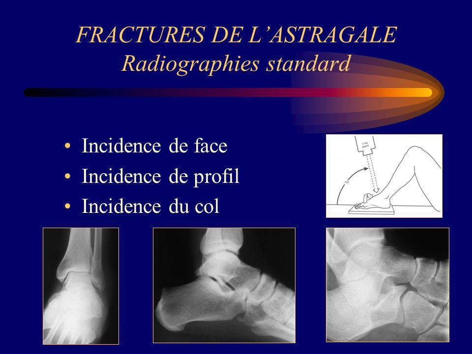 FRACTURES DE L'ASTRAGALE Radiographies standard