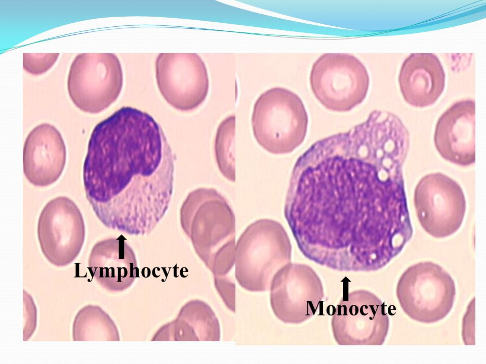 Lymphocyte Monocyte