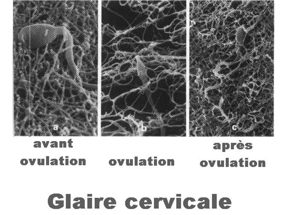 Glaire cervicale