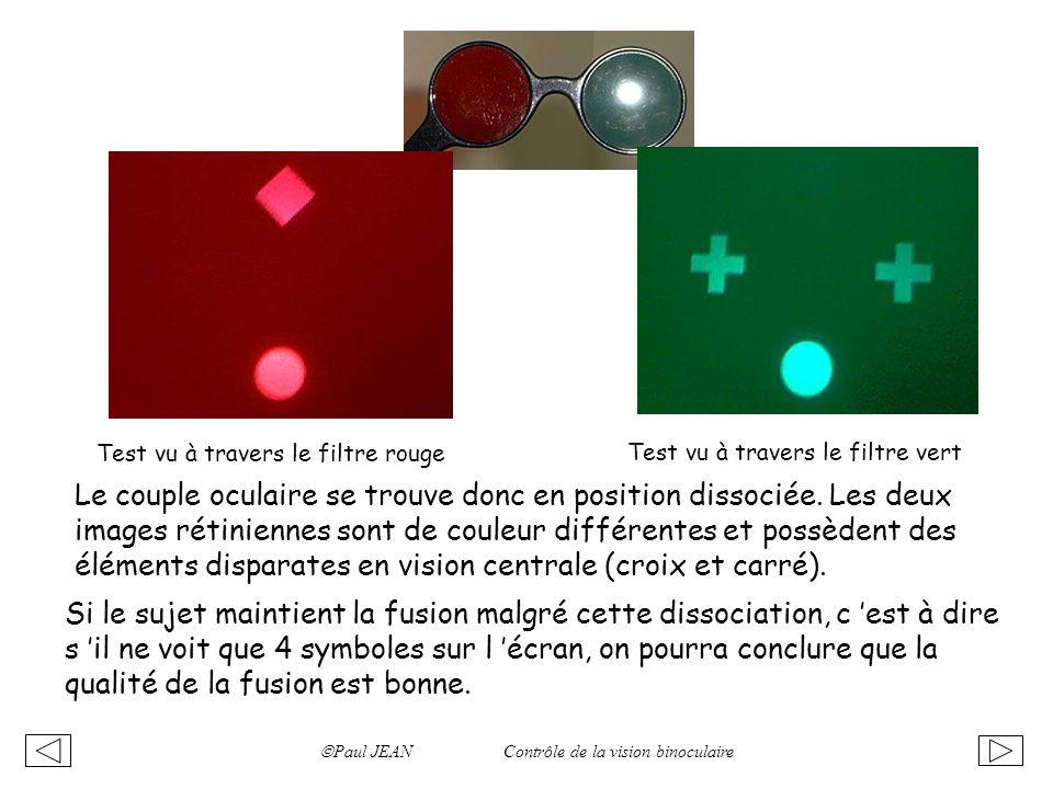 Le contrôle de la vision binoculaire pour un sujet ne présentant ... a581024afa28