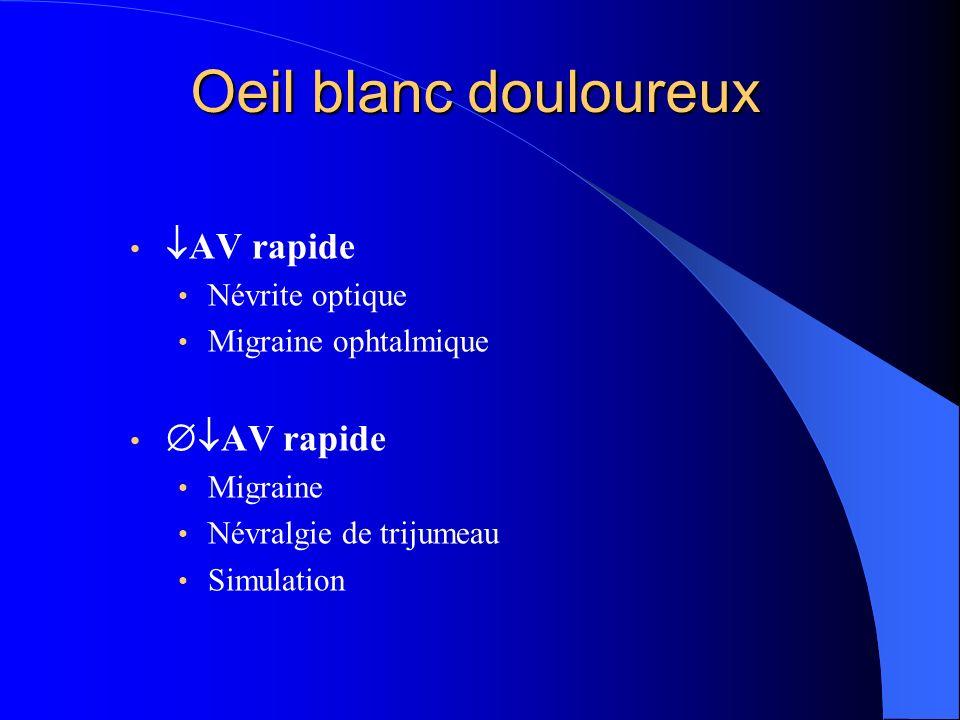 mugraine ophtalmique sans douleurs