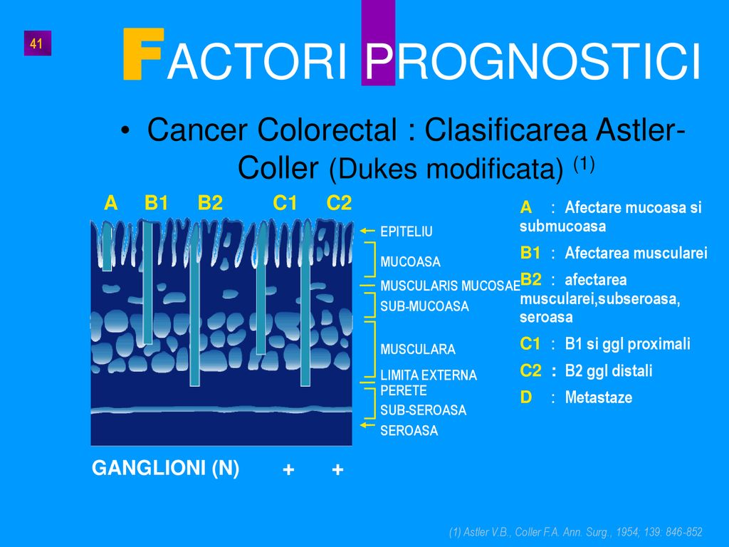 Cancer Colorectal : Clasificarea Astler-Coller (Dukes modificata) (1)