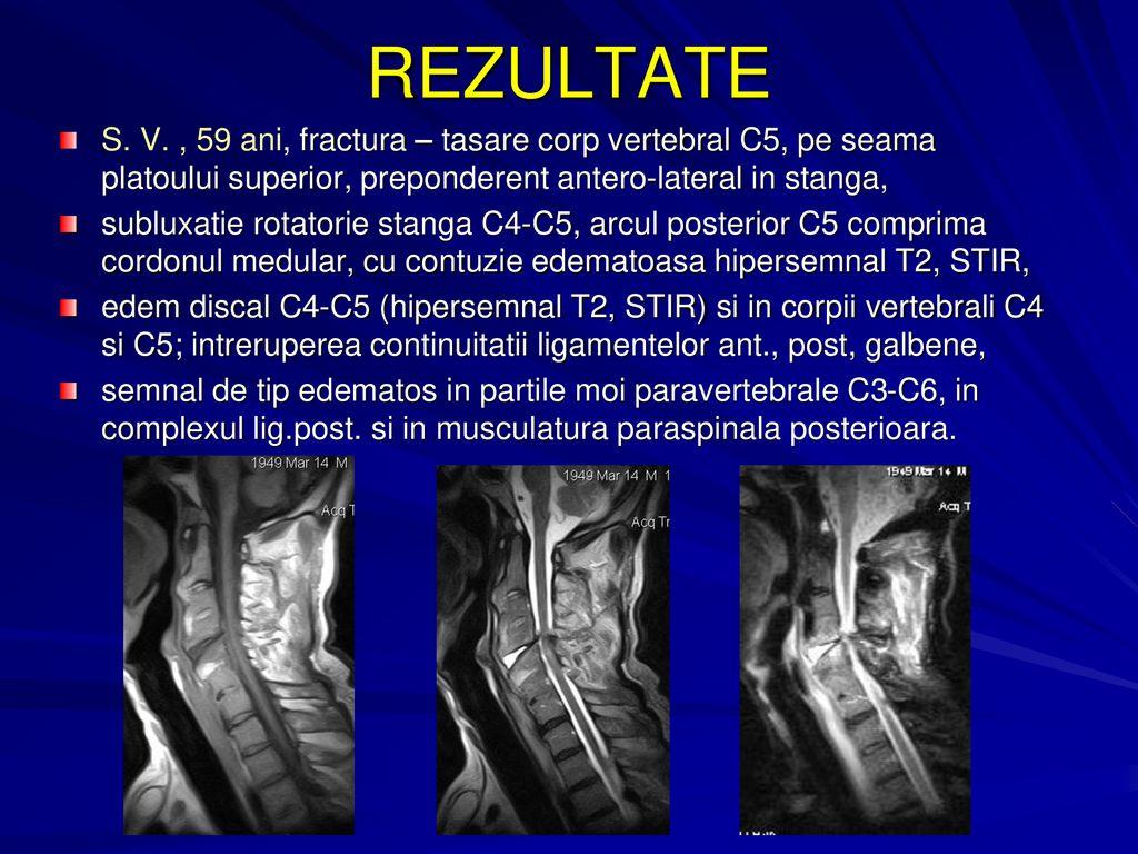 Totul despre edemul spinal - Miozita -
